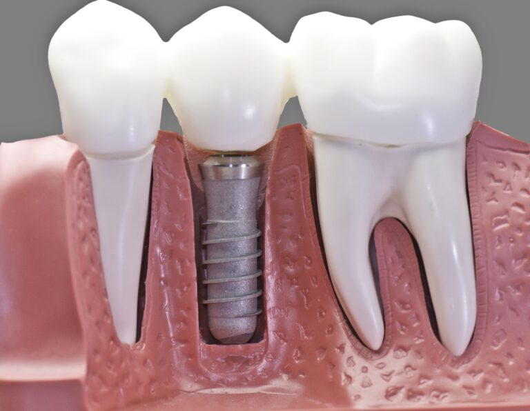 Implantologia - zdjęcie implantu zębowego